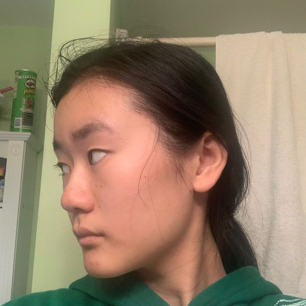two weeks after using the ordinary's niacinimide 10% alpha aburtin 2% and natural moisturizing factors... | Cherie