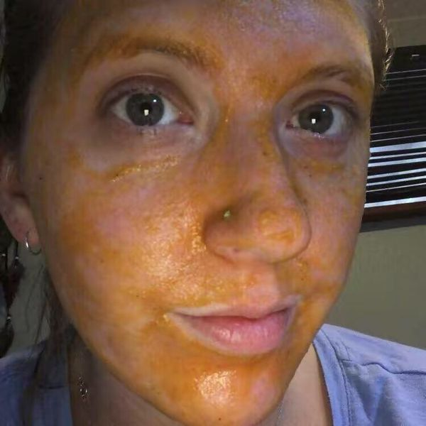Acne sufferers need to read!!! | Cherie