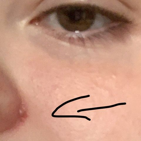 Bump on side of nose hurts