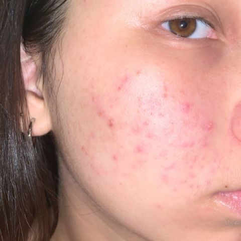 curology skin journey + what is my acne called?