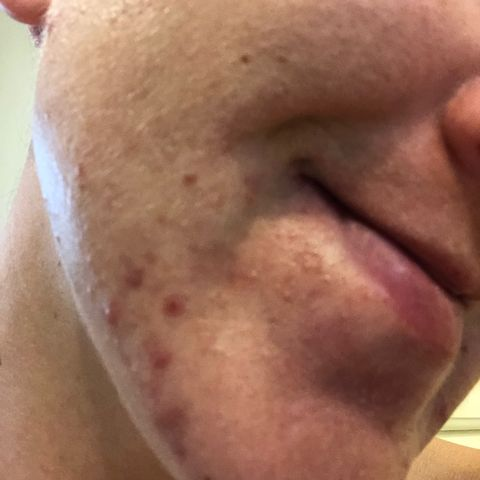 HELP! Jaw and chin acne