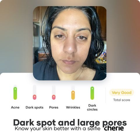 How to get rid of dark spots and large pores