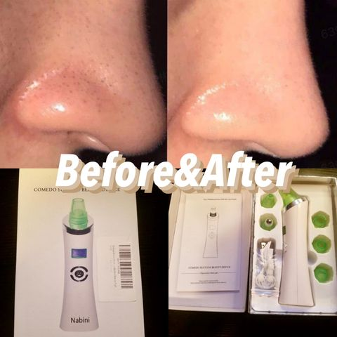 100% recommended Blackheads Remover