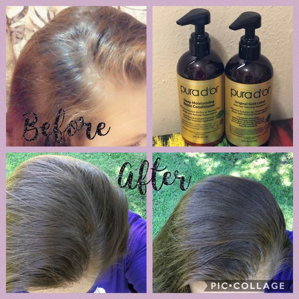 I started a hair journey awhile back with a company called Pura d'or and I... | Cherie