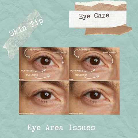 Listen to your eyes! Common Eyearea concerns