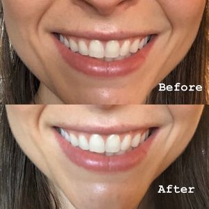 Teeth Whitening Products Cherie
