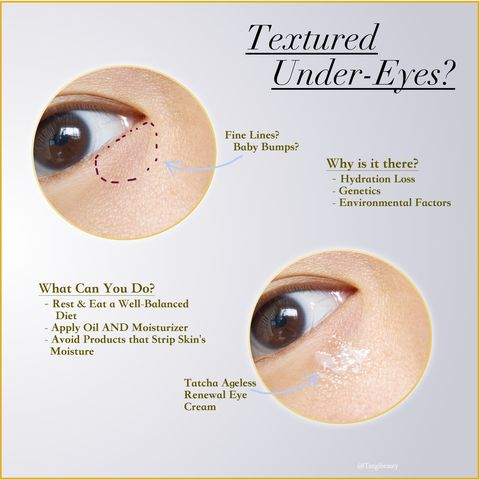 How to Improve Textured Under-Eyes! (Tip) ❤️