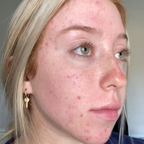 Accutane (Isotretinoin) — 3 weeks in