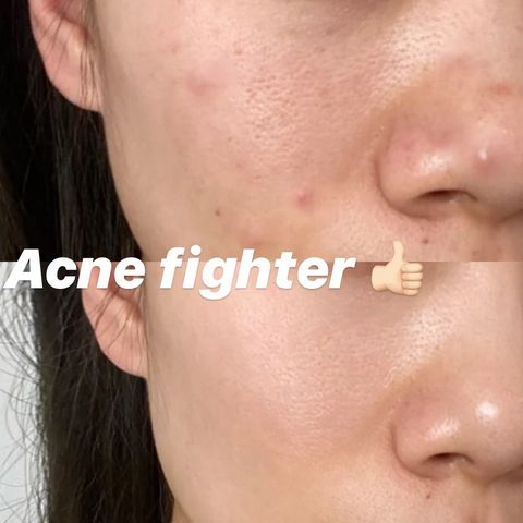 Bye-bye acne, thanks to French drugstore brand!
