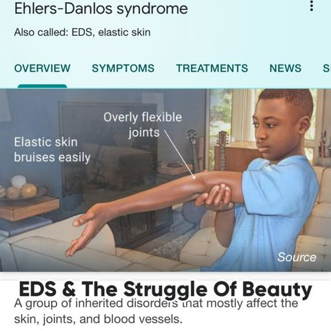 How EDS Affects Beauty