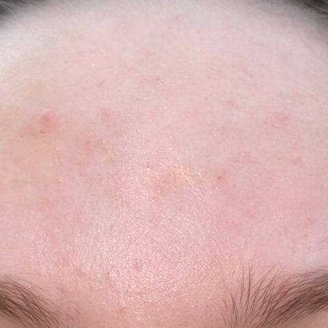 What my skin looks like at the beggining