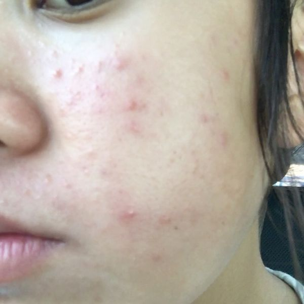A couple products that cleared my skin | Cherie