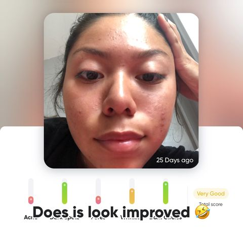 Cerave SA renewing Cleanser doing to my face !