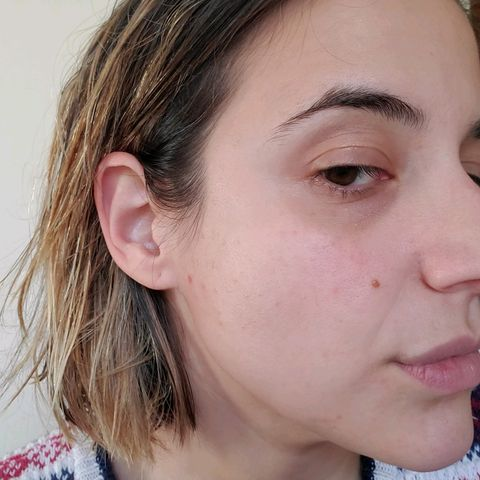 rosacea/acne Before (1,2) and after (3,4)!