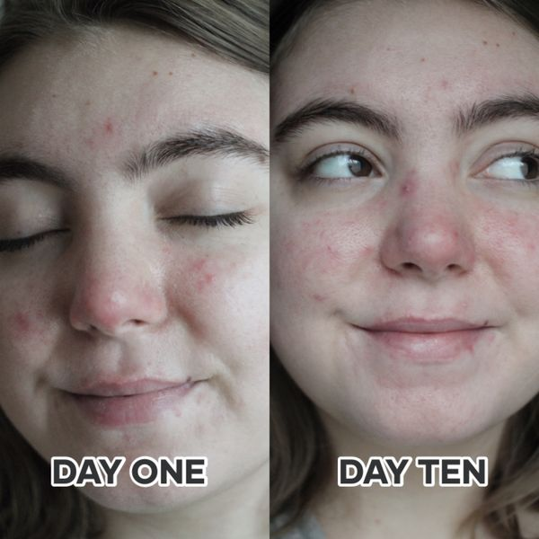an amazing line for dull skin + pigmentation | Cherie