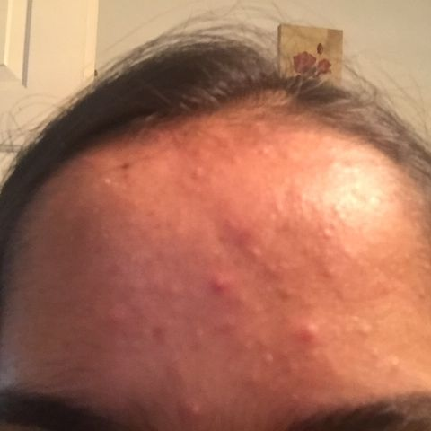 Fungal acne and acne