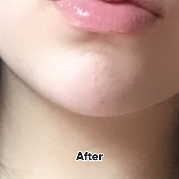 Quick Soloution to Acne Free Skin (1-2 weeks) | Cherie