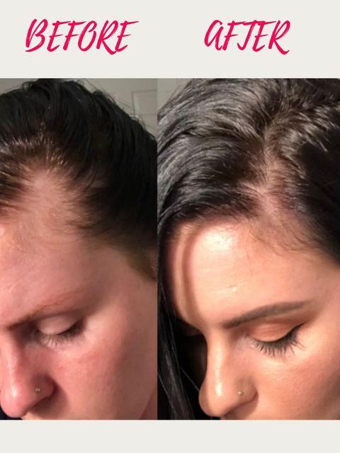 Worrying About Hair Loss Problem?