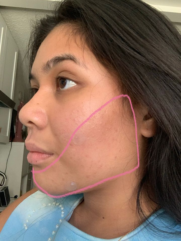 If you have acne in this area, this might be why