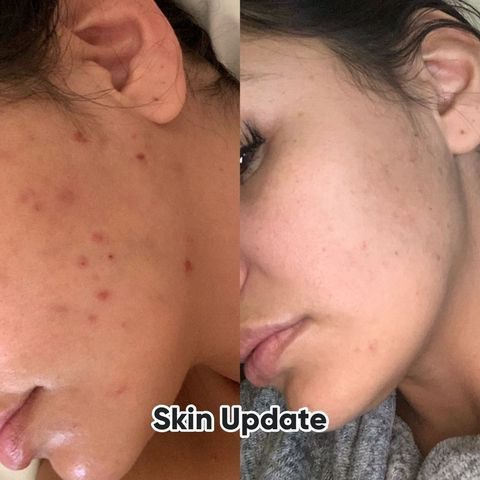HELP! What do you use for acne scars/dark spots?