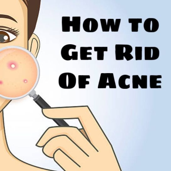 Skincare 101: How to Banish Acne For Good! | Cherie