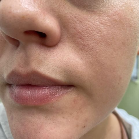 What would you call this problem with my pores?