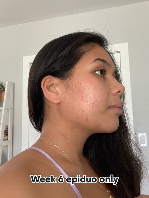 Week 6 of derm treatment- epiduo only