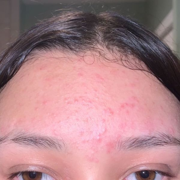 curology skin journey + what is my acne called? | Cherie