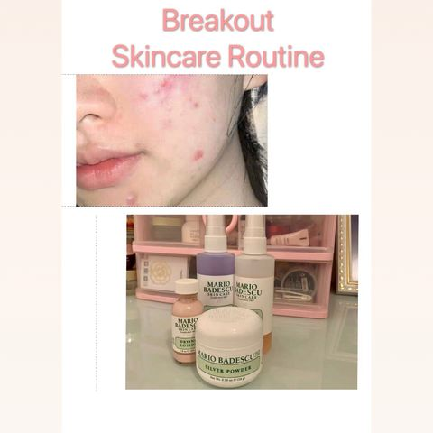 My skincare routine when Breakout🧐