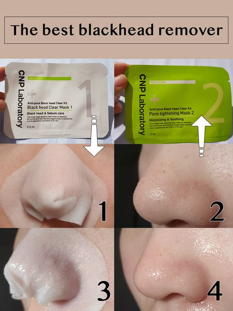Get rid of blackhead with me👀