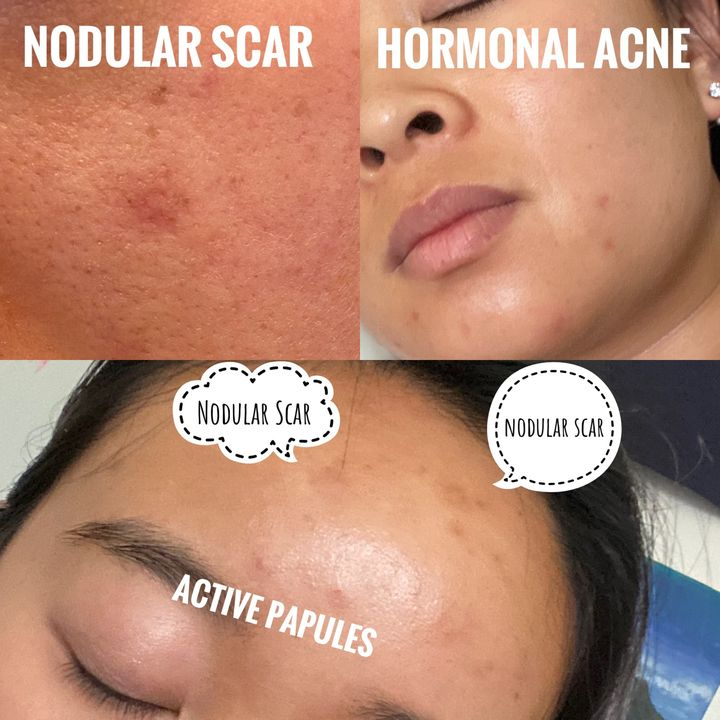 How To Deal With Acne Do S Don T S Cherie