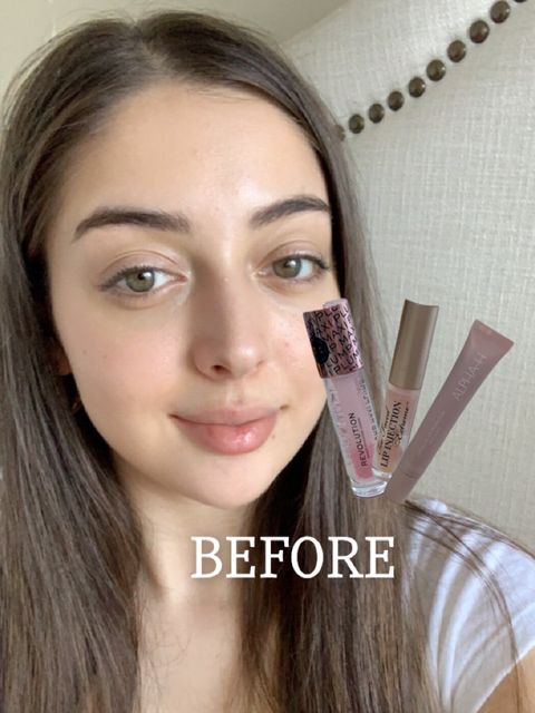WHICH LIP PLUMPER IS BEST? (Before & Afters)