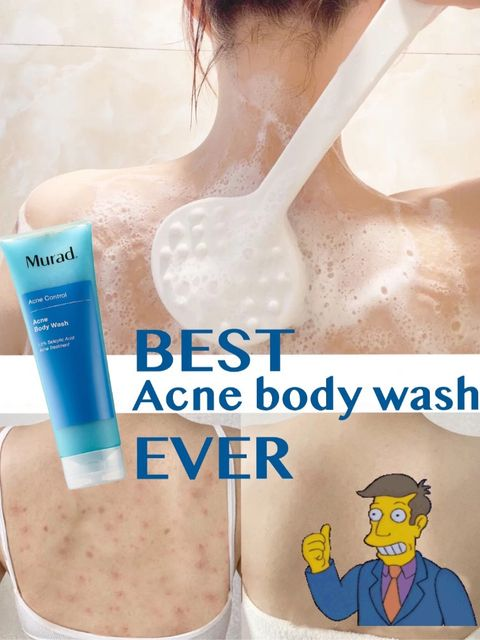 Back acne savior 👍🏻 get rid of acne in 7 days!