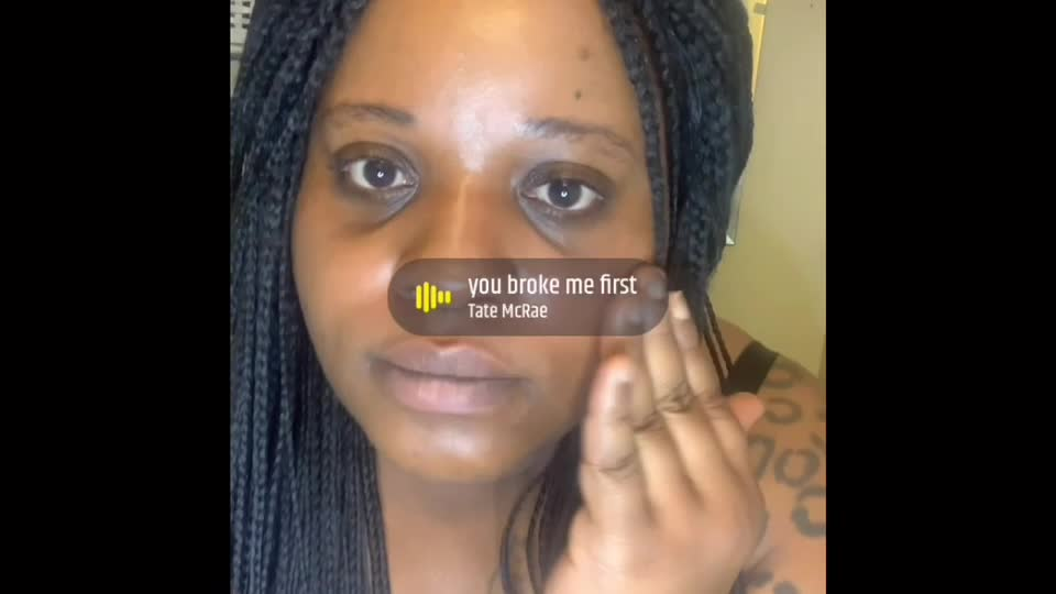 Hyperpigmentation: Living in my TRUTH